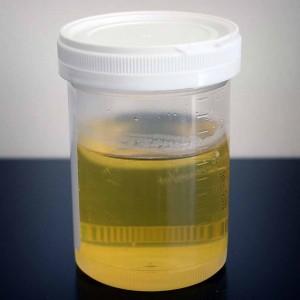 Gelb, rosa oder sogar blau: Was dein Urin verrät