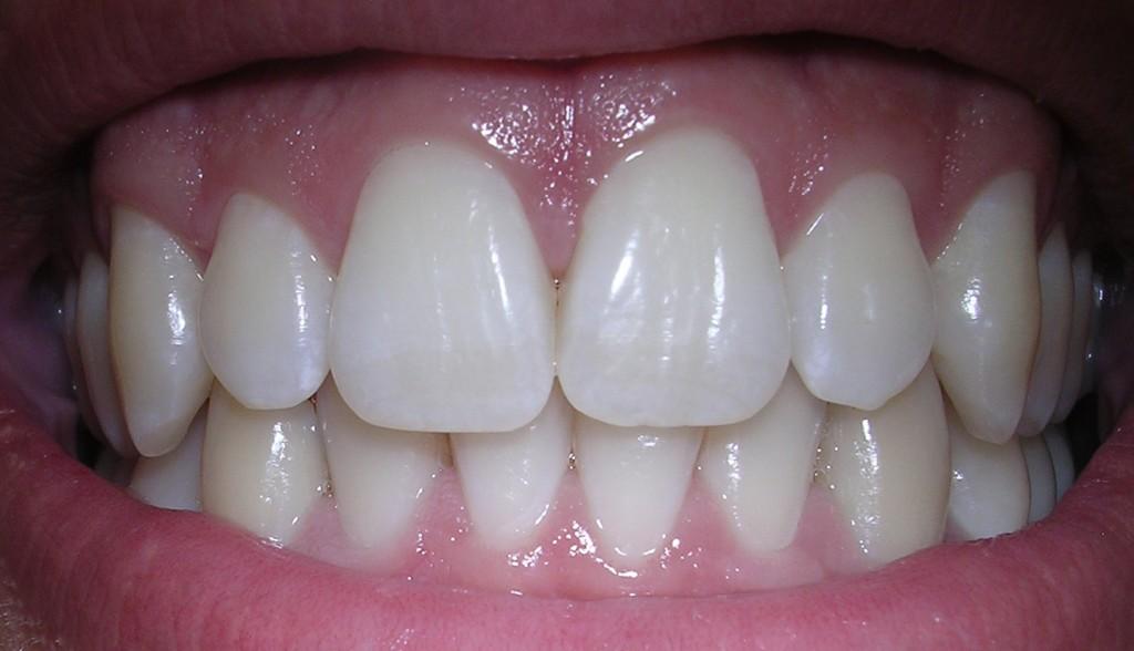 Natürlich weiße Zähne, ganz ohne chemisches Bleaching