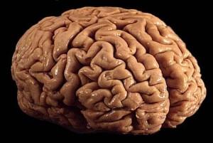 Warum anhaltender Schlafmangel das Gehirn nachhaltig schädigen kann